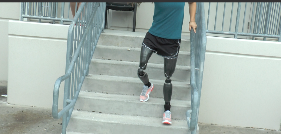 TaiLor Made Foot Enables Ryanne to Walk Down Stairs with Control!
